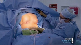Botched S05E10 Playing With Fire HDTV x264-CRiMSON EZTV